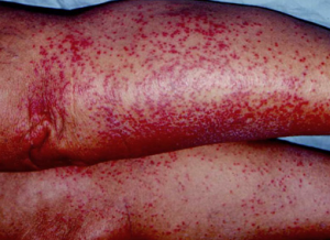 heat rash on legs