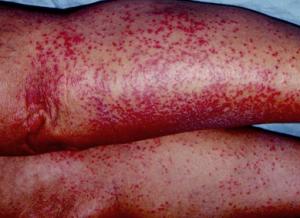 heat rash on legs